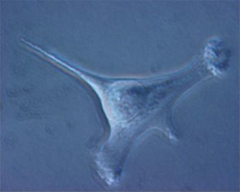 1) Cellula differenziata  (fibroblasto-ovino) appena trasfettata con il gene della protamina