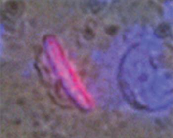 2) Dopo 48 ore, i fibroblasti che producono la protamina acquisiscono la struttura nucleare (in rosso) tipica dello spermatozoo
